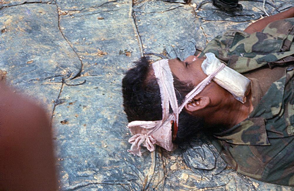 Image 39 Richard LynghaugWOUNDED KIT KARSEN SCOUT, WAITING FOR CHOPPER MED EVACNORTHERN I-CORP, VIETNAM 1969Richard Lynghaug3rd Marine Bat. 3rd Recon Quang Tri, Vietnam February – November 1969