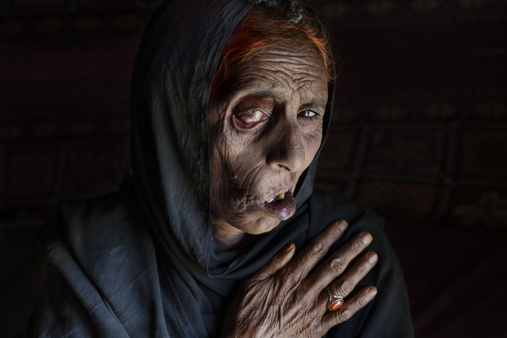 Kabul, April 10, 2015. Naiz Bibi, who was blinded in one eye, claims she is sixty-eight but really can't remember clearly. After a NATO air strike killed seven members of her family, including her husband, a daughter, and two sons, she and eight remaining family members fled north, ending up in the squalid Nasaji Bagrami camp along with thousands of other war refugees.