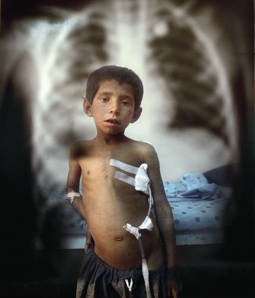 Kandahar, October 13, 2009. Seven-year-old Attiullah, a patient at Mirwais Hospital, stands alongside an X ray showing the bullet that entered his back, nearly killing him. Attiullah was shot by US forces when he was caught in crossfire as he was herding sheep.
