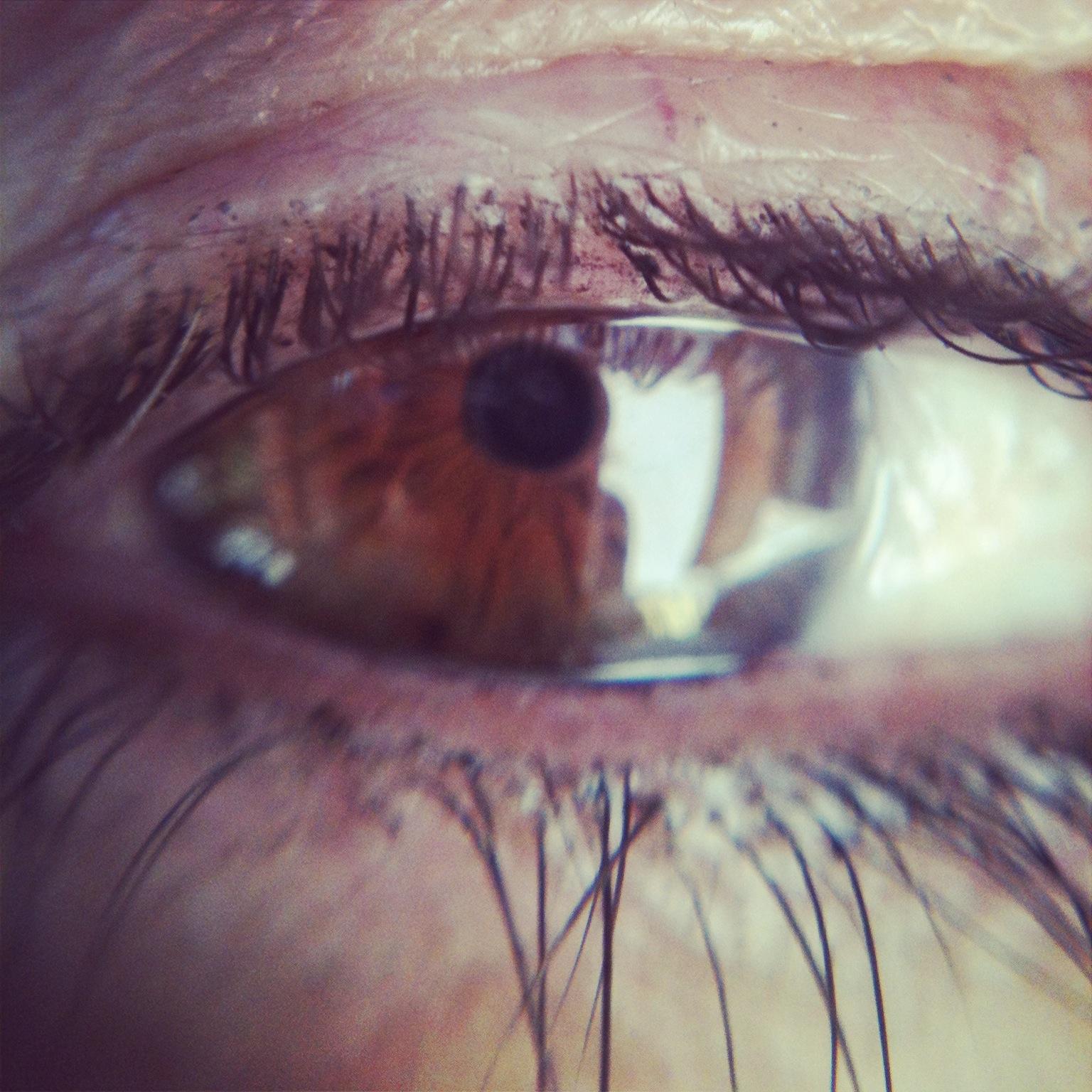 mothers-eye