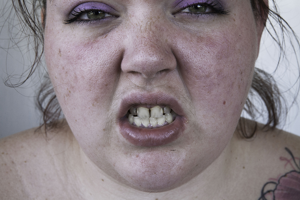 Britt's_Teeth