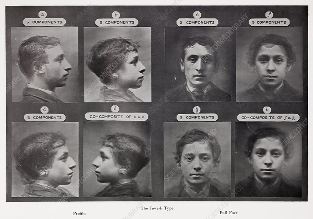 Galton's eugenics, Jewish portraits, 1878. 'The Jewish Type' from Pearson's 'Life of Galton'. Galton developed (initially in parallel with Herbert Spencer) the idea and method of combining images, (Galton used negative exposures) of the faces of a number of individuals sharing a perceived 'characteristic' (health, race, profession, criminality etc) to gain an average type. He believed his findings would help in medical diagnosis, criminal investigations, etc. The composite of 'The Jewish Type' was taken as being successful and helpful in anthropological research and identification of generic lines of descent. Galton believed composite photography scientifically formalised the physical traits people use everyday to make classification judgements of people. But Galton's role as the father of eugenics, and the holocaust of WWII give this photograph special poignance.
