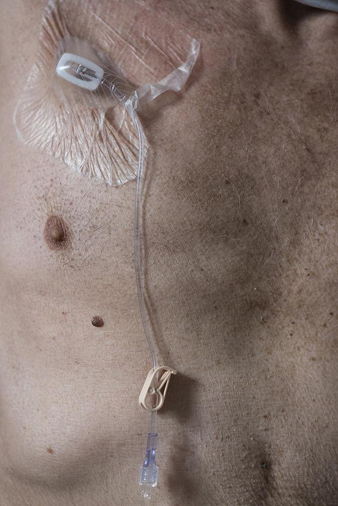 5.Chemo
